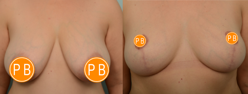 Breast Reduction in Perth, with Dr Patrick Briggs