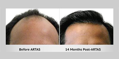 Artas iX Robotic Hair Transplant