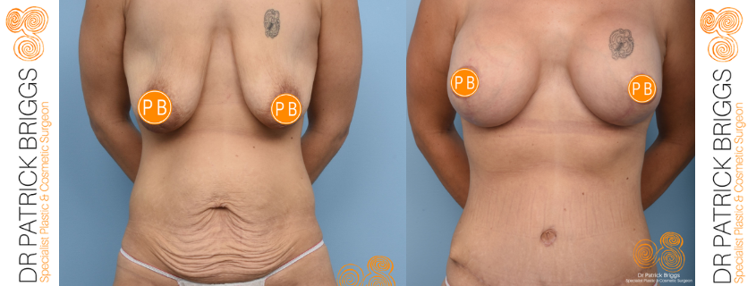 Sara's Tummy Tuck, Breast Augmentation and Lift with Dr Patrick Briggs, WA