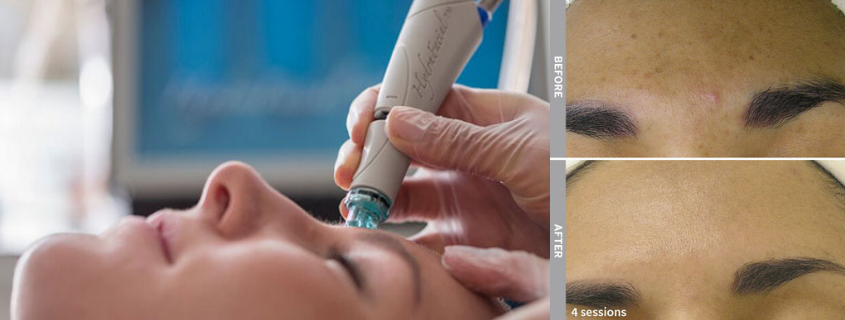 Hydrafacial – get the best skin you've ever had