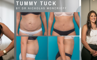 Katie's Abdominoplasty with Dr Nicholas Moncrieff at Hunter Plastic Surgery