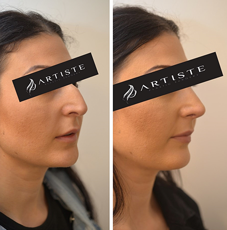 Rhinoplasty Total Nose