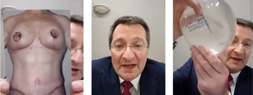 Before, During and After Surgery Care, a FB Live with Dr Craig Rubinstein