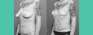 breast reduction lift