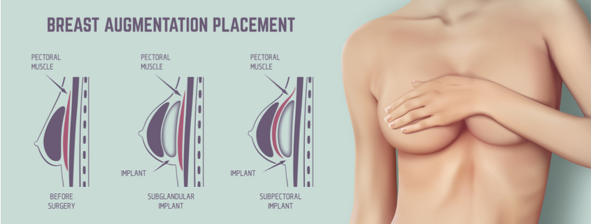 Capsular Contracture – Do I Have It & Can It Be Treated?