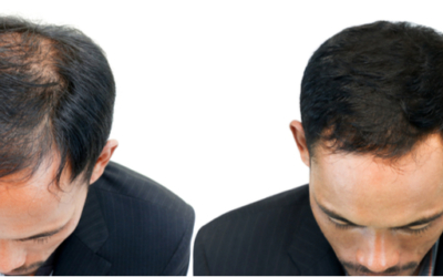 Which Hair Transplant Method Offers the Least Downtime?