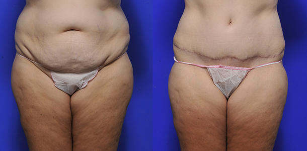Abdominoplasty