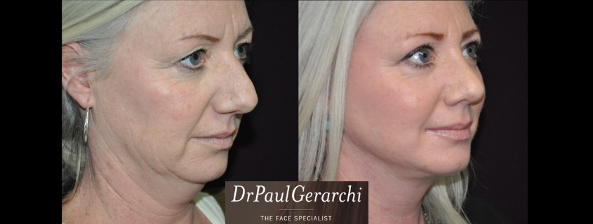 The Ageing Face – Dr Paul Gerarchi Talks Faces