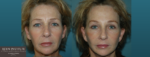 Facelift Blepharoplasty