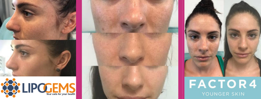 Factor 4 and Lipogems – the more natural rejuvenation with better results!