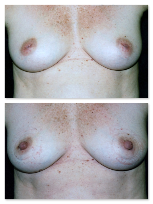 breast nipple deformity