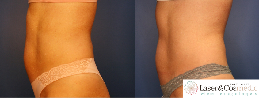 Non-Surgical Fat Reduction and Body Contouring with TruSculpt ID