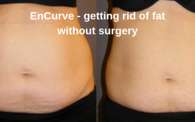 enCurve – getting rid of fat without surgery