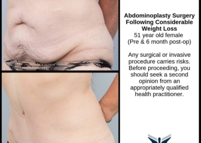 Weight Loss Excess Skin