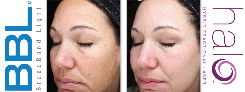 Treating Age Spots, Rosacea, Freckles, Skin Conditions with the BBL and Halo