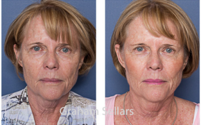 The Sculpted Face, Without Surgery – What Fillers Can Do