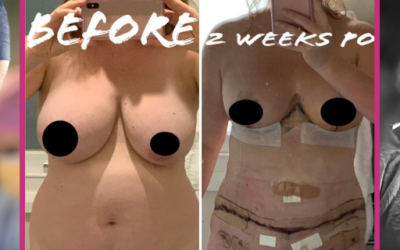 Tika's Breast Reduction, Abdominoplasty and Liposuction