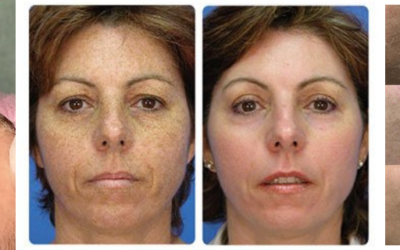 Have you had Dermaplaning yet?