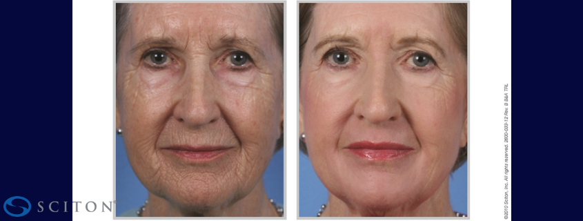 Laser Skin Tightening and Rejuvenation with Contour TRL