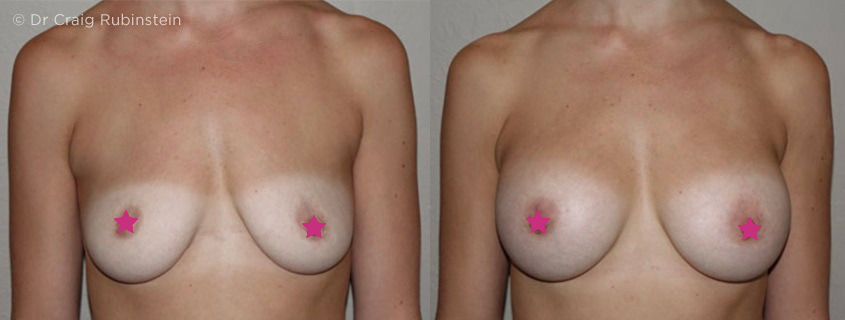 What to look for in a Breast Surgeon