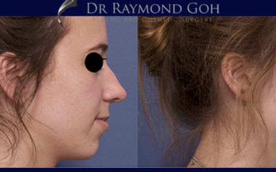 Dr Raymond Goh Talks Rhinoplasty, Septoplasty, Revisions and all things Noses