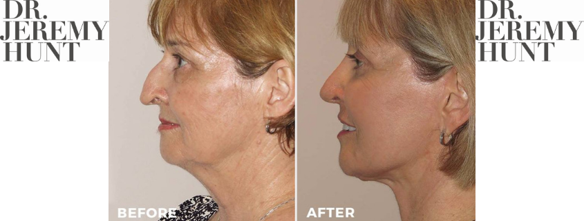 From Big to Beautiful – Rhinoplasty Recovery Time
