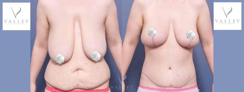 Sharni's breast reduction and lift, belt lipectomy and mons lift with Dr Matthew Peters