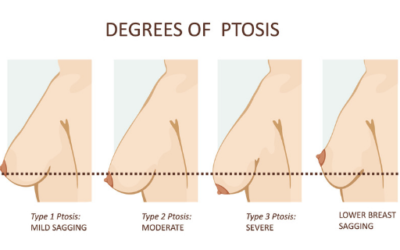 Breast Ptosis – what is it and how is it treated?