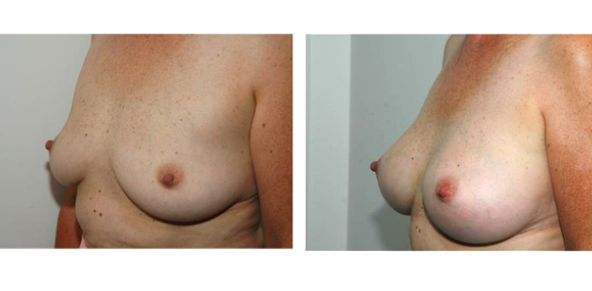 Breast Augmenation
