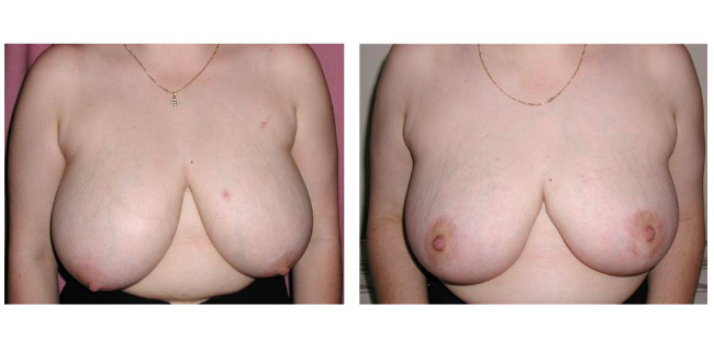 Breast Augmentation and Lift