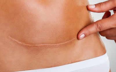 Silicone is the Key – What should you look for in a scar gel?