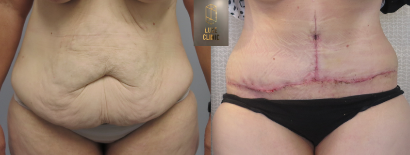 Alicia's Surgery After Massive Weight Loss with Dr Mahyar Amjadi
