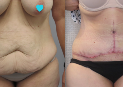 Surgery After Massive Weight Loss