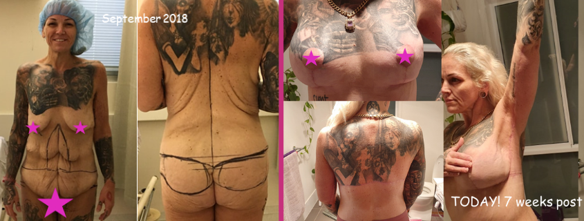 Amanda's Transformation with Dr Justin Perron – Part 2