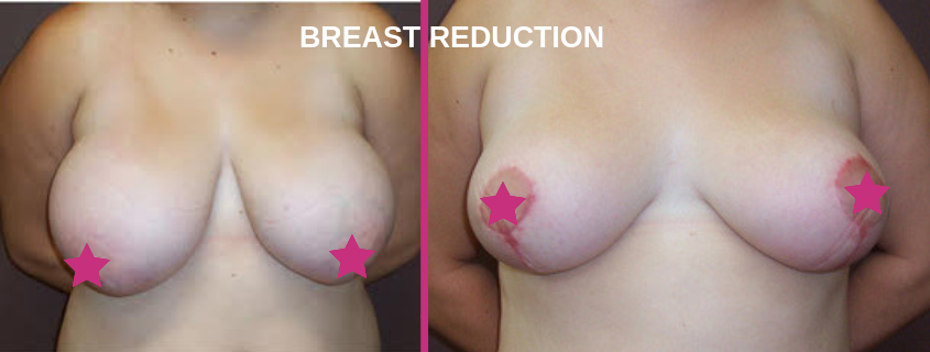 Breast Reduction Surgeon in Cairns