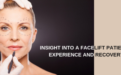 Insight into a Facelift Patient's Experience and Recovery