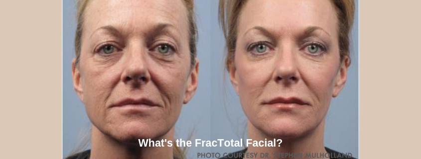 What's the FracTotal Facial and Why Do We Want It?