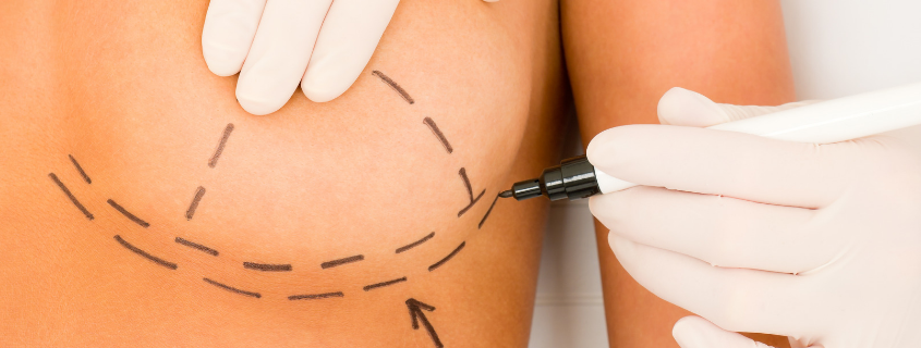 What is the Inframammary Fold, and how does it affect breast surgery?