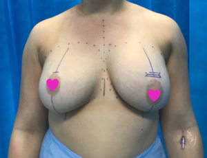 Breast Implants Removal and Replacement
