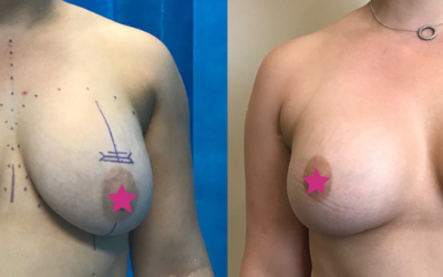 Lauren's Breast Implant Removal and Replacement