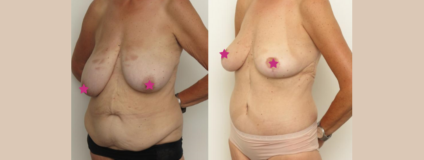The Ins and Outs of the Tummy Tuck