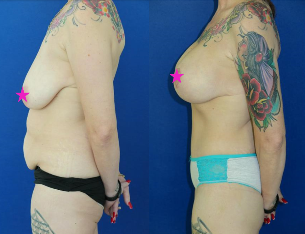 Ins Outs Tummy Tuck