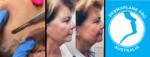 Dermaplane Pro Treatment
