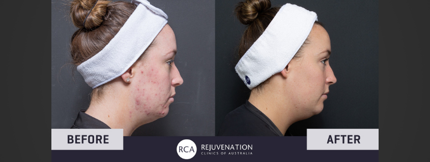 Kirsten's Triple Combo Acne Treatment gets amazing results