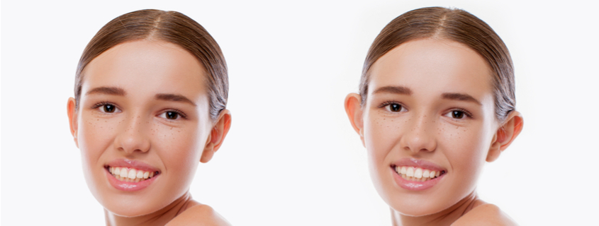 Is Otoplasty Surgery Right for You?