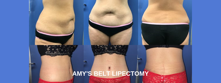Amy's Belt Lipectomy or Lower Body Lift, in her own words