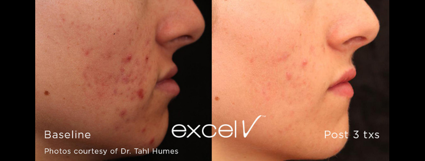 Excel V + – the Gold Standard for veins, skin redness, pigmentation, rosacea and various other skin ageing issues