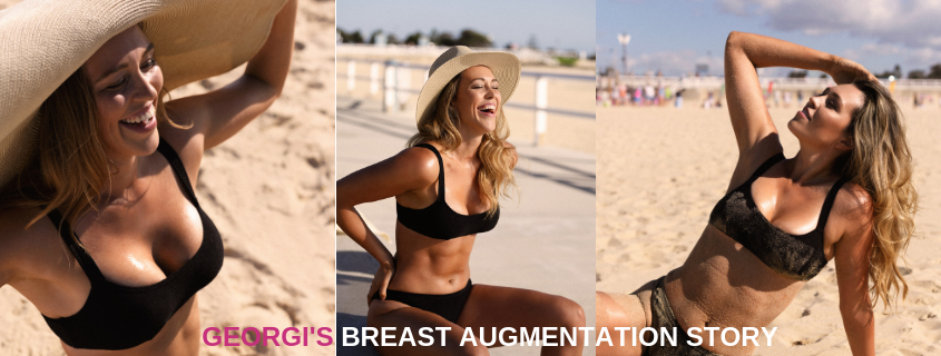 Georgi's Breast Augmentation Story