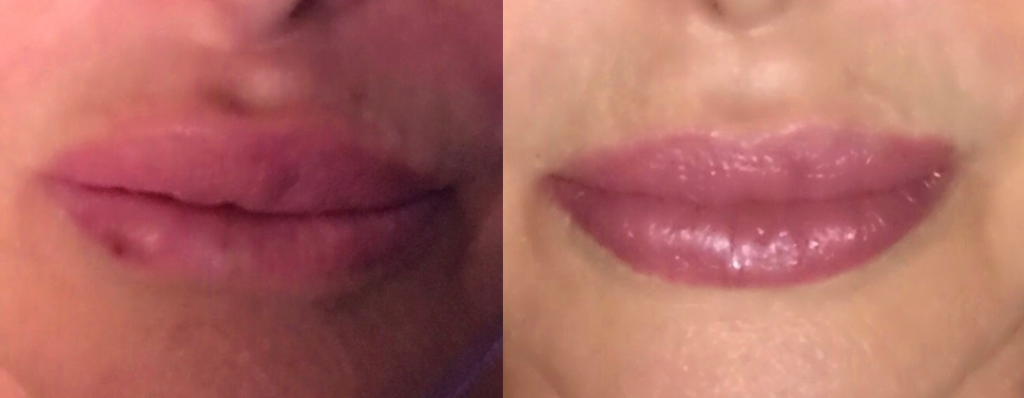 Silicone Lip Injections