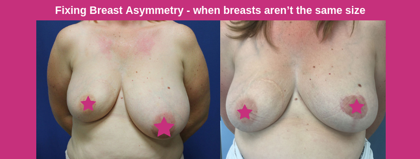 Fixing Breast Asymmetry – when breasts aren't the same size